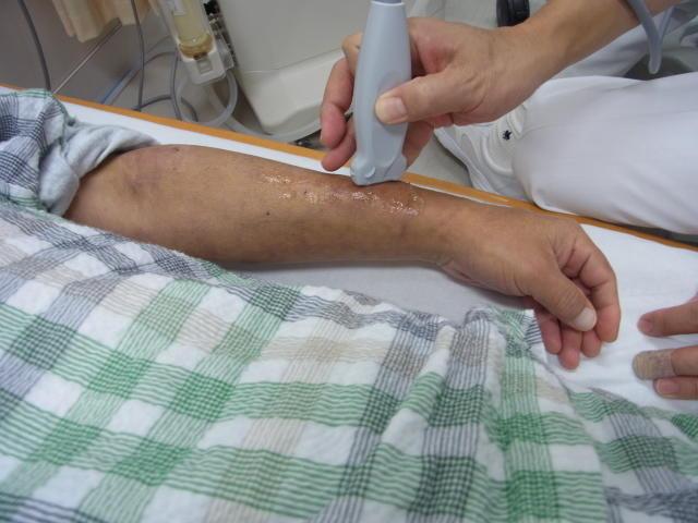 臨床工学科透析CAPDの例写真